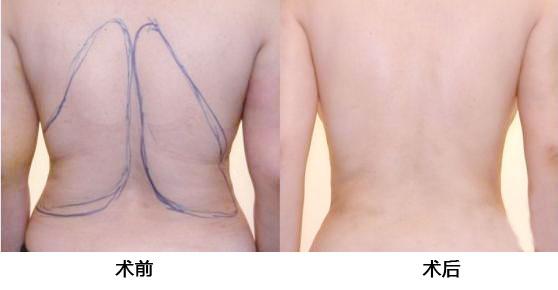 背部吸脂就容易练出肌肉了吗