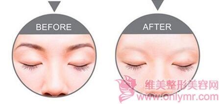 激光洗眉后出现疤痕要如何做