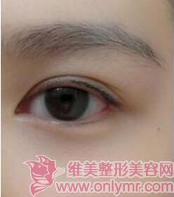 睫毛种植案例:睫毛又长又翘