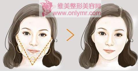 瘦脸针术后会出现反弹现象吗