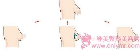 乳房下垂矫正过程中会疼吗