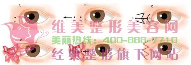 开内眼角术前常识须知