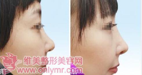 隆鼻最佳年龄是多少岁?