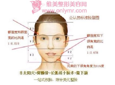 面部过宽做改脸型效果好吗