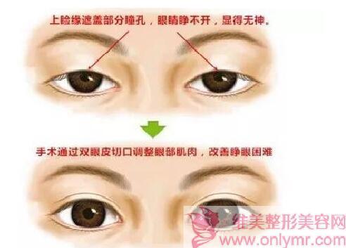 双眼皮手术为什么那么受欢迎