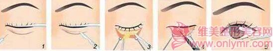 眼袋整复术手术仪器具有选择功能吗
