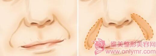 玻尿酸鼻唇沟充填术具有保湿效果吗