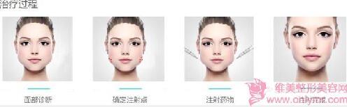 瘦脸针打三次就可以达到永久瘦脸吗