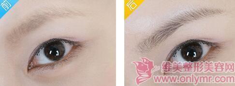 眉毛种植需要多久时间呢