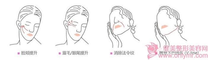 面部开始出现衰老症状,可以试试面部线雕哦