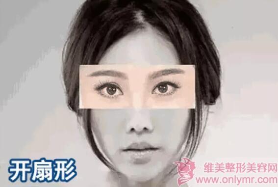 """一双眼是如何""""毁掉""""整张脸的?割双眼皮真的很重要"""