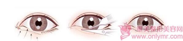 做开眼角可以很好地改变我们的双眼皮吗