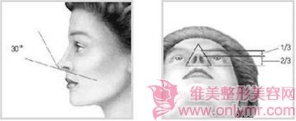 全鼻整形手术会有危险吗