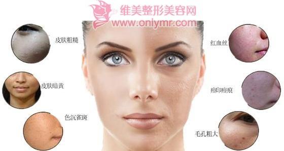 光子嫩肤可以解决毛孔粗大问题吗