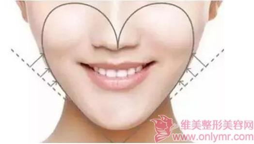 面部吸脂术后的消肿难度大吗