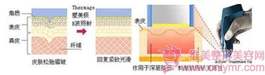 热玛吉除皱,有效改善皮肤衰老症状