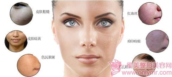 光子嫩肤后可以用防晒霜