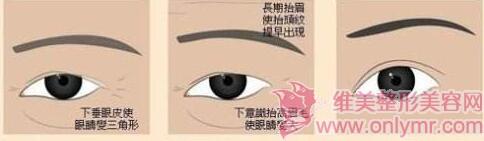 三角眼矫正的安全性如何保证