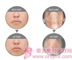 激光面部脱毛会对皮肤有影响吗