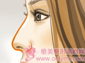 玻尿酸鼻尖整形存在风险吗