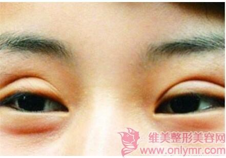 表浅性疤痕的人能不能做双眼皮