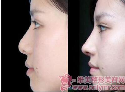 任何失败的隆鼻手术都有修复的机会吗