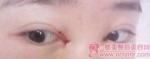 开眼角手术案例:两眼间的距离远,做开眼角术后就变美了