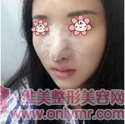 假体隆鼻案例:鼻子塌真难看,做了假体隆鼻变漂亮了