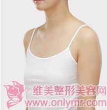 假体隆胸案例:从平胸妹子变成性感女神了