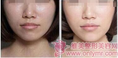 皮肤缺水带来的皮肤问题,水光针可以解决哦