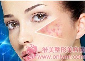 微针去痘疤有多重效果的吗