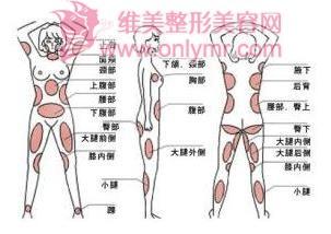 臀部吸脂对于下垂能有改善吗