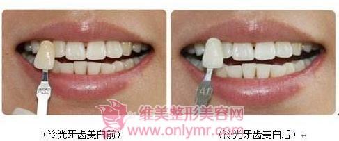 冷光美白牙齿有安全保障吗