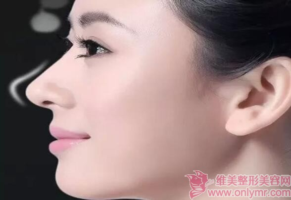 维美整形网分享:常见的隆鼻失败症状及修复方法