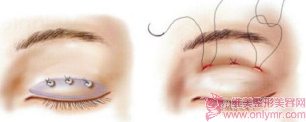想要把双眼皮做得好看,就要避免这些误区