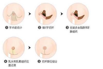 乳房缩小手术的风险大吗