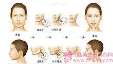 下颌角形态不好,什么方法可以解决呢