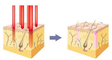 彩光嫩肤不适合光敏性皮肤吗