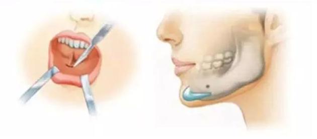假体隆下巴后会导致面部僵硬吗