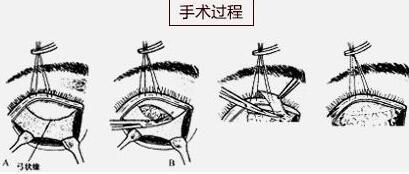 眼袋整复术是做微创小切口吗