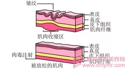 肉毒素是去除动态纹的好帮手