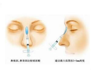 注射隆鼻取出时也是需要注意吗