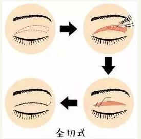 原来单眼皮跟双眼皮之间,差的不仅仅是那一根线