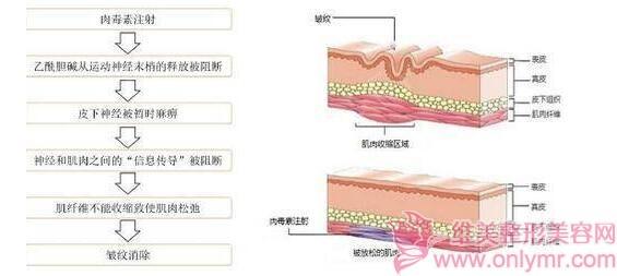 肉毒素PK玻尿酸,谁的除皱效果会更好