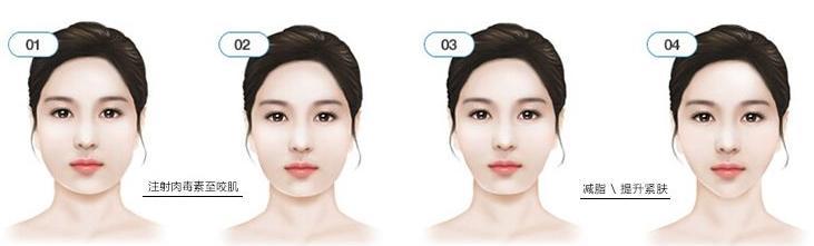 瘦脸针后脸会出现不对称吗