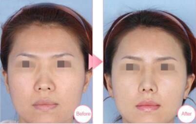 鼻翼缩小案例:术后鼻子看着小巧很多