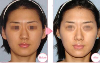 鼻头缩小案例:鼻子变小变得更立体了