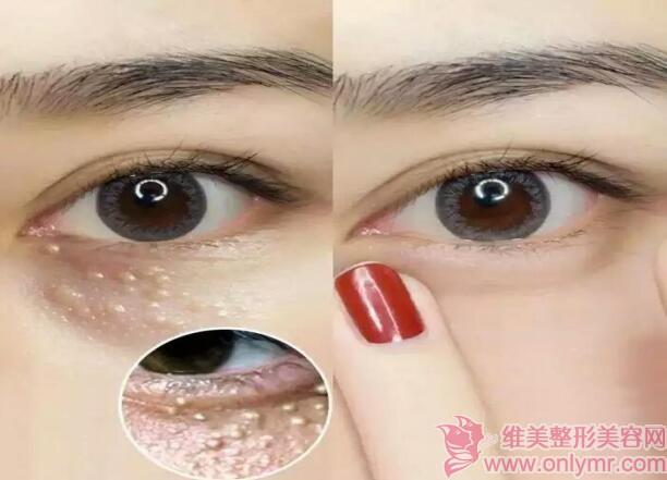 维美整形网教你如何去除眼部脂肪粒,这三个小妙招很实用