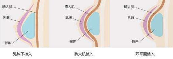 假体隆胸术后乳房真实自然吗