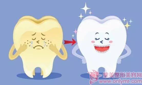 牙齿的自述:这些牙齿美白误区让我一点都不白